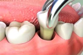 Tooth extraction Beverly Hills