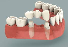 Dental bridge Beverly Hills