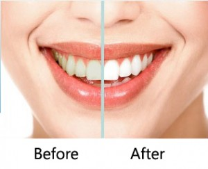 zoom teeth whitening Beverly Hills