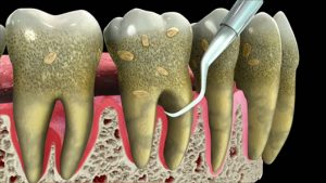 Periodontal treatment Beverly Hills