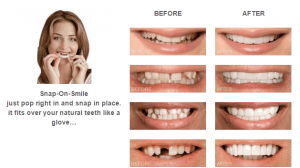 Snap On Smile Beverly Hills